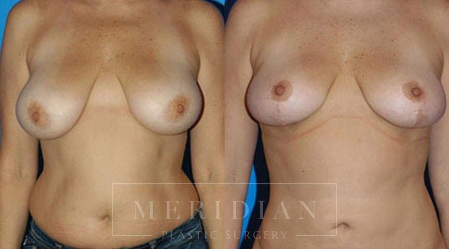 tjelmeland-meridian-austin-body-contouring-patient-23-1