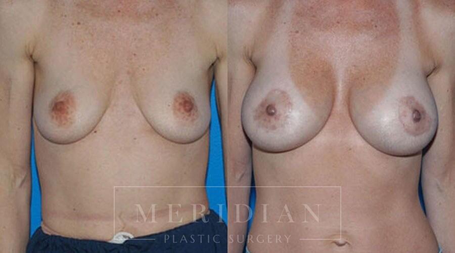 tjelmeland-meridian-austin-body-contouring-patient-24-1