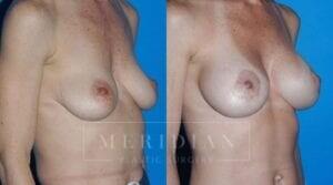 tjelmeland-meridian-austin-body-contouring-patient-24-2