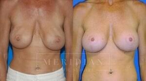 tjelmeland-meridian-austin-body-contouring-patient-25-1