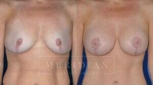 tjelmeland-meridian-austin-body-contouring-patient-26-1