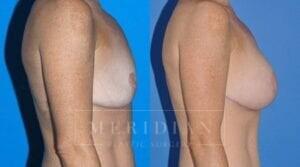 tjelmeland-meridian-austin-body-contouring-patient-26-2