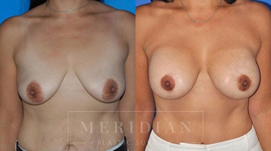tjelmeland-meridian-austin-body-contouring-patient-27-1