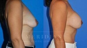 tjelmeland-meridian-austin-body-contouring-patient-27-2