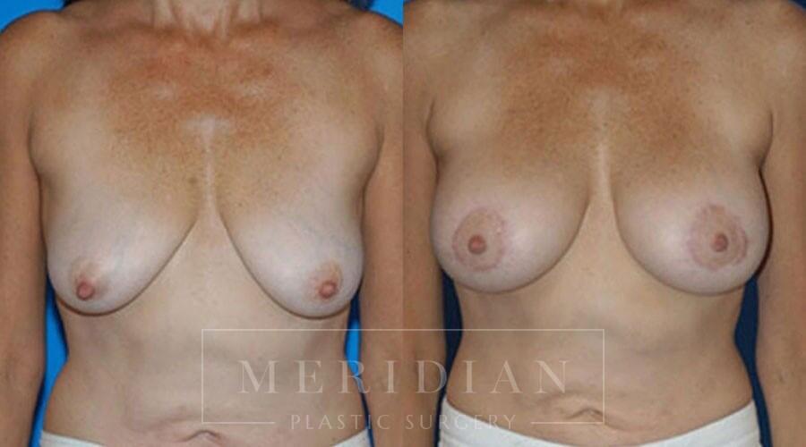 tjelmeland-meridian-austin-body-contouring-patient-28-1