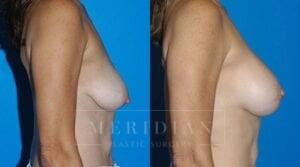 tjelmeland-meridian-austin-body-contouring-patient-28-2