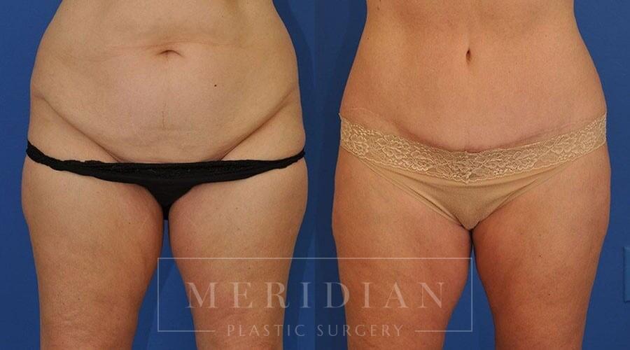 tjelmeland-meridian-austin-body-contouring-patient-30-1