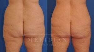 tjelmeland-meridian-austin-body-contouring-patient-30-2
