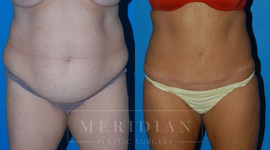 tjelmeland-meridian-austin-body-contouring-patient-4-1