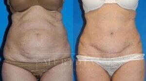 tjelmeland-meridian-austin-body-contouring-patient-5-1