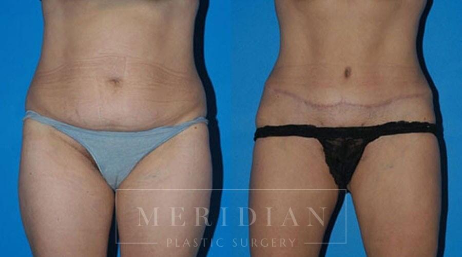 tjelmeland-meridian-austin-body-contouring-patient-6-1