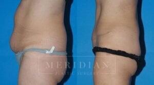 tjelmeland-meridian-austin-body-contouring-patient-6-2