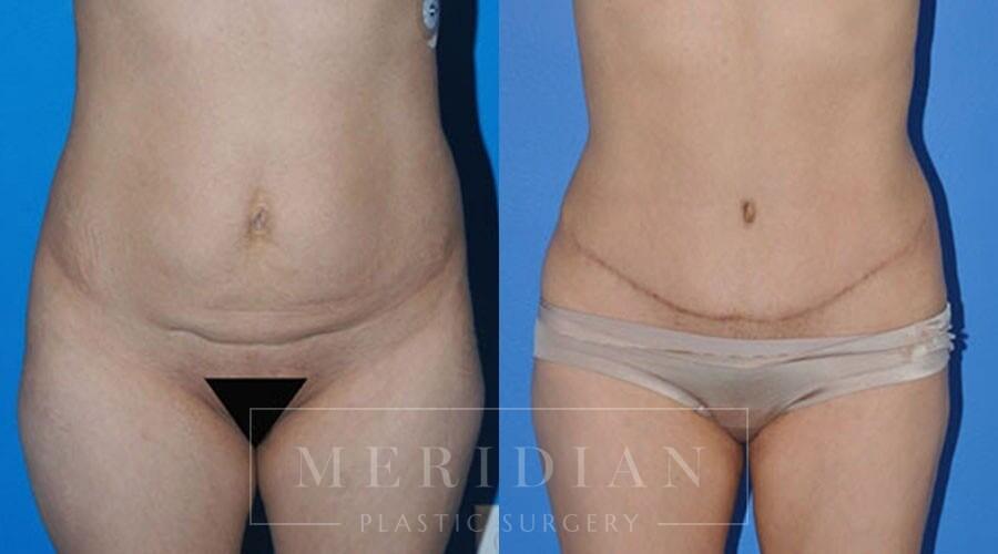 tjelmeland-meridian-austin-body-contouring-patient-7-1