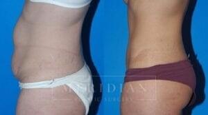 tjelmeland-meridian-austin-body-contouring-patient-9-2