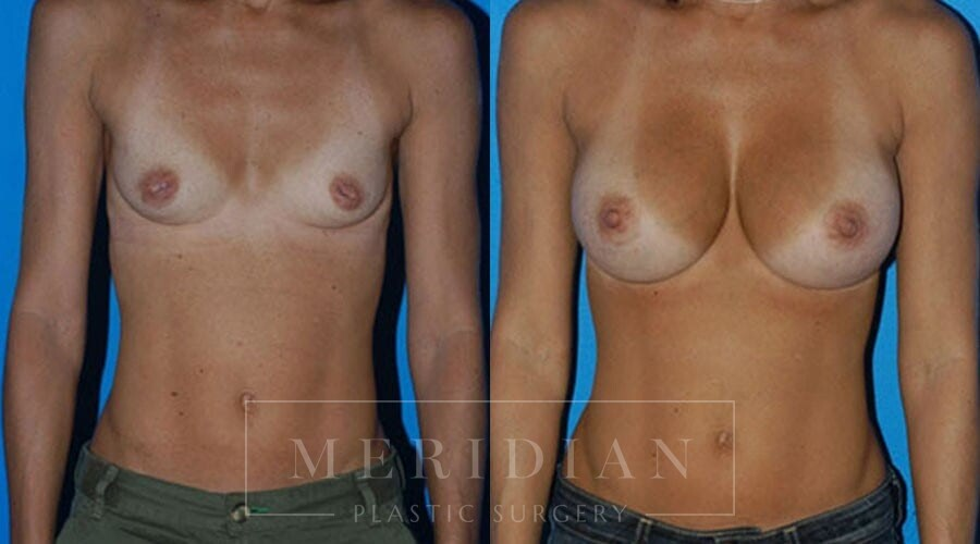 tjelmeland-meridian-austin-breast-augmentation-patient-1-1