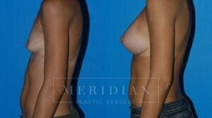tjelmeland-meridian-austin-breast-augmentation-patient-1-2