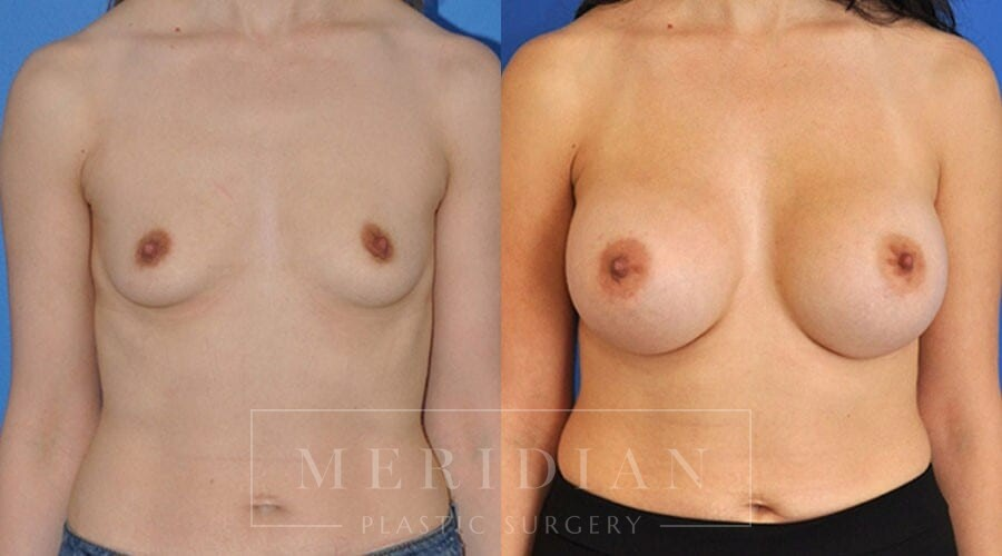 tjelmeland-meridian-austin-breast-augmentation-patient-10-1