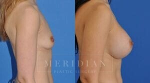 tjelmeland-meridian-austin-breast-augmentation-patient-10-2