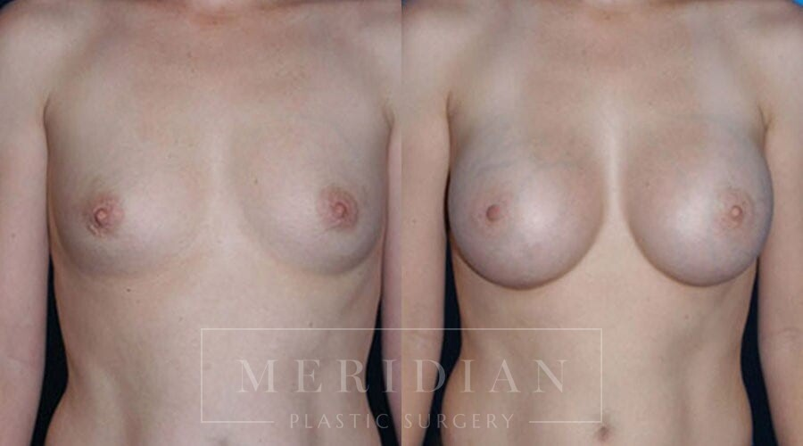 tjelmeland-meridian-austin-breast-augmentation-patient-2-1