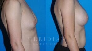 tjelmeland-meridian-austin-breast-augmentation-patient-2-2