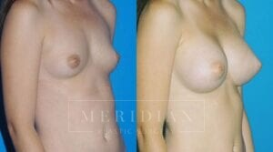 tjelmeland-meridian-austin-breast-augmentation-patient-3-2