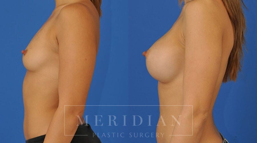 tjelmeland-meridian-austin-breast-augmentation-patient-36-2