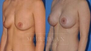 tjelmeland-meridian-austin-breast-augmentation-patient-4-2