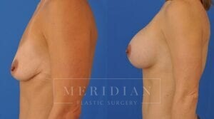 tjelmeland-meridian-austin-breast-augmentation-patient-5-2