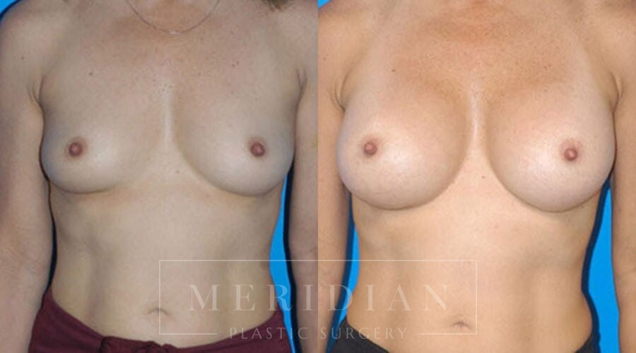 tjelmeland-meridian-austin-breast-augmentation-patient-6-1