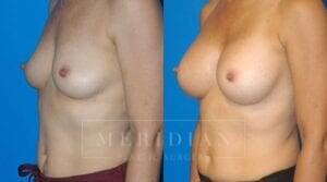 tjelmeland-meridian-austin-breast-augmentation-patient-6-2