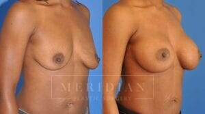 tjelmeland-meridian-austin-breast-augmentation-patient-7-2