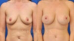 tjelmeland-meridian-austin-breast-augmentation-patient-8-1