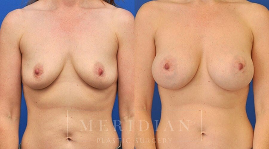 tjelmeland-meridian-austin-breast-augmentation-patient-8-1