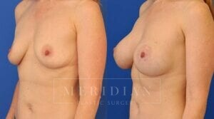 tjelmeland-meridian-austin-breast-augmentation-patient-8-2