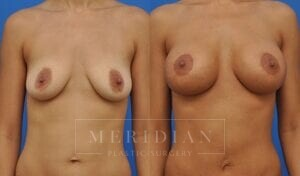 tjelmeland-meridian-austin-breast-lift-patient-1-1