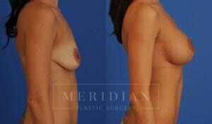 tjelmeland-meridian-austin-breast-lift-patient-1-2