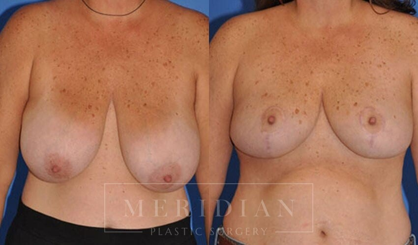 tjelmeland-meridian-austin-breast-lift-patient-10-1