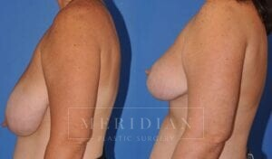 tjelmeland-meridian-austin-breast-lift-patient-10-2
