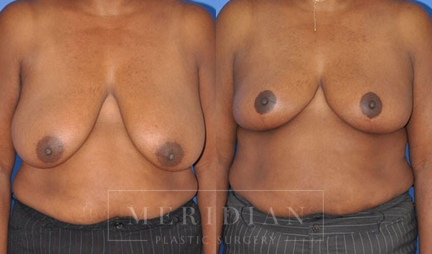 tjelmeland-meridian-austin-breast-lift-patient-3-1