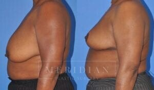 tjelmeland-meridian-austin-breast-lift-patient-3-2