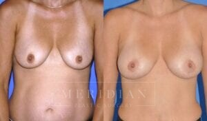tjelmeland-meridian-austin-breast-lift-patient-4-1