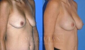 tjelmeland-meridian-austin-breast-lift-patient-4-2