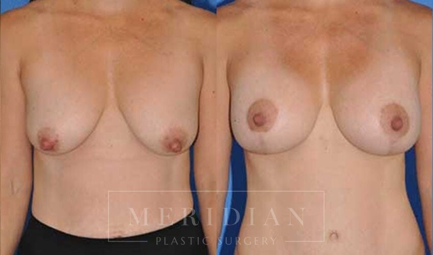 tjelmeland-meridian-austin-breast-lift-patient-5-1