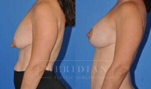 tjelmeland-meridian-austin-breast-lift-patient-5-2