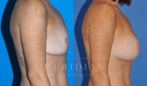 tjelmeland-meridian-austin-breast-lift-patient-6-2