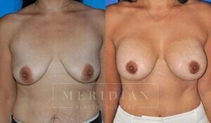 tjelmeland-meridian-austin-breast-lift-patient-7-1