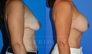 tjelmeland-meridian-austin-breast-lift-patient-7-2