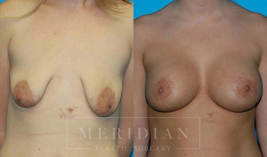 tjelmeland-meridian-austin-breast-lift-patient-8-1