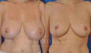 tjelmeland-meridian-austin-breast-lift-patient-9-1