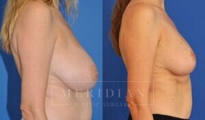 tjelmeland-meridian-austin-breast-lift-patient-9-2